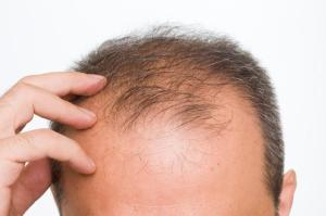 Gene-Therapy-Cure-For-Baldness